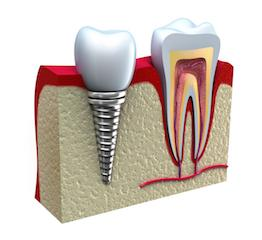 side view of dental implant I LJ dentistry in moline il