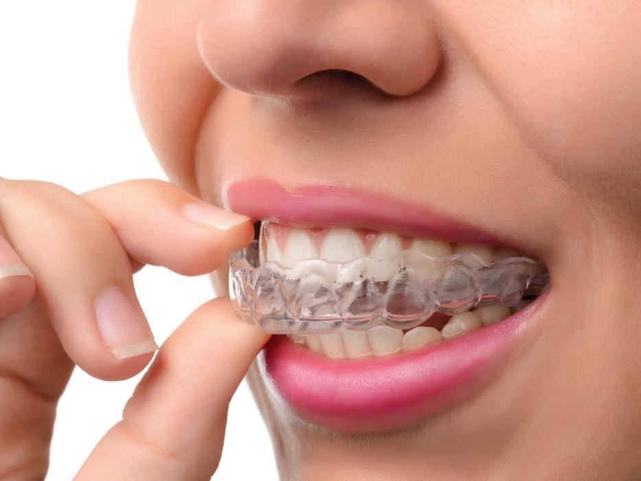 Woman putting on Invisalign clear braces | Invisalign Quad Cities 61265