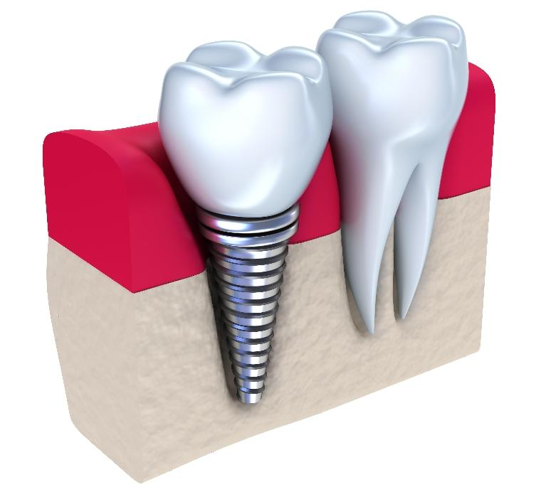 Dental Implants | LJ Dentistry | Moline, IL