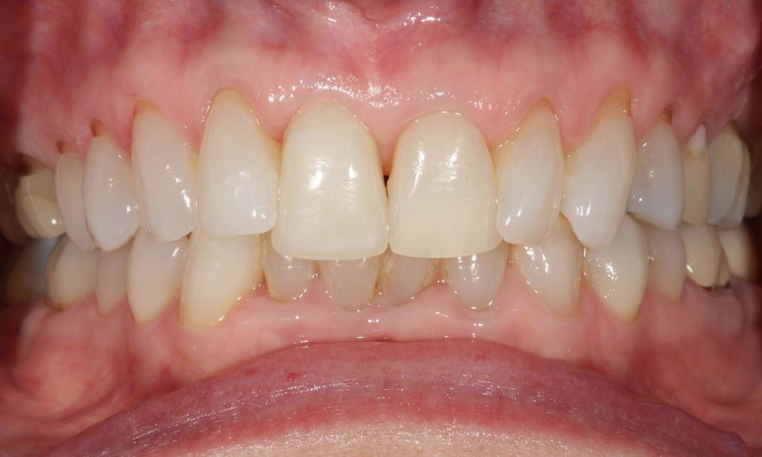 image of the same smile after a dental implant and crown | Moline IL