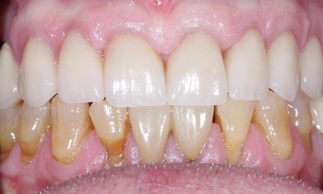 image of the same teeth after placing new dental crowns | dental crowns Moline IL