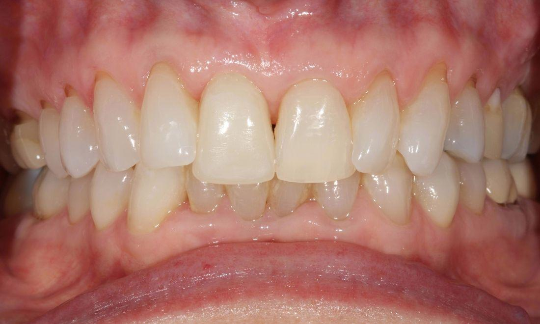 image of the same smile after a dental implant and crown | dental implants Moline IL
