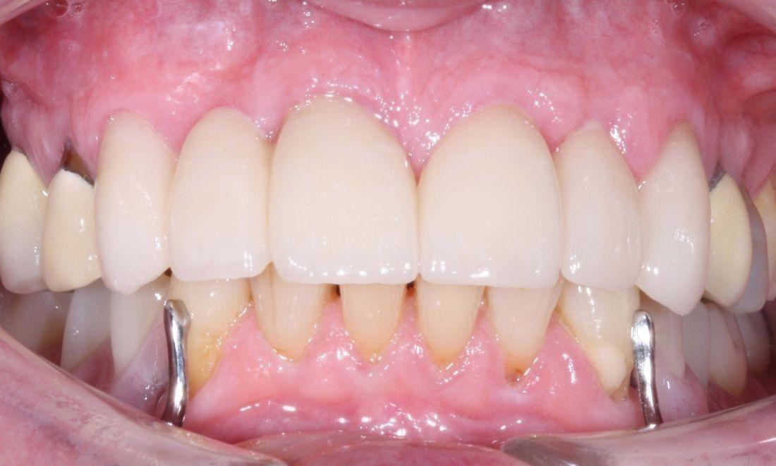 image of the same teeth following crown and bridge work | dentist Moline IL