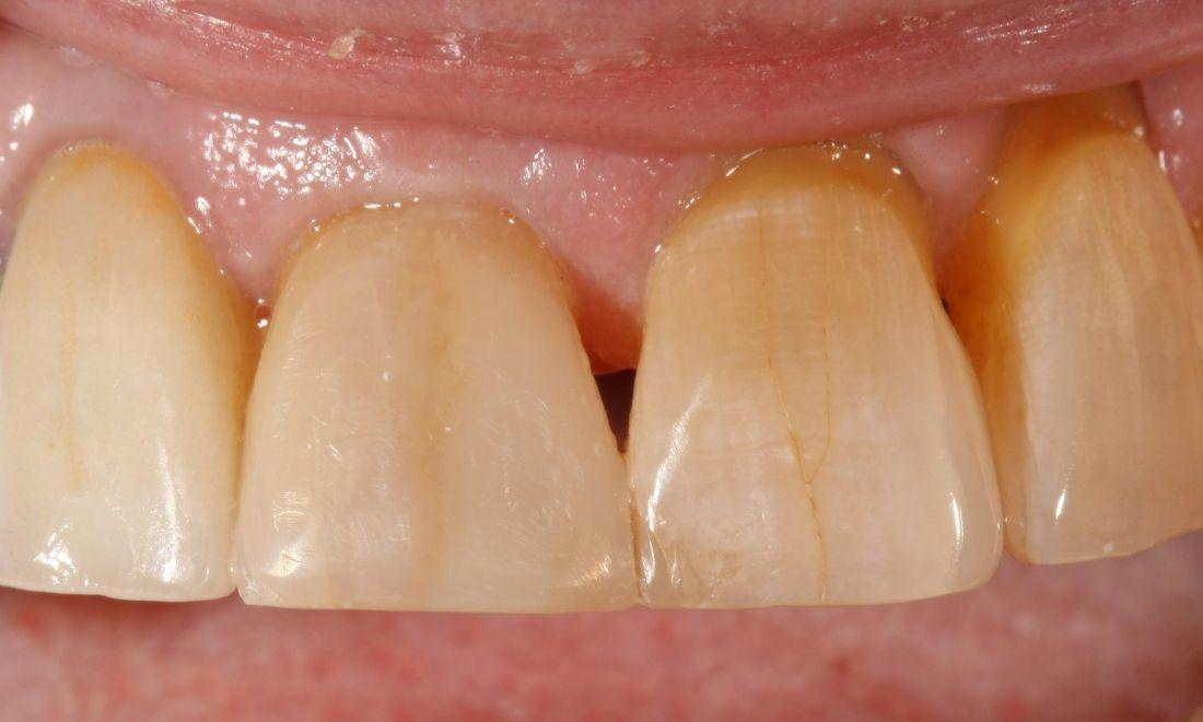 image of the same tooth after dental bonding | dentist Moline IL