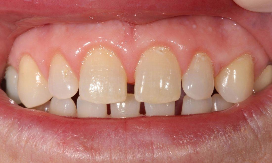 image of the same teeth after laser gum treatment | laser dentistry Moline IL