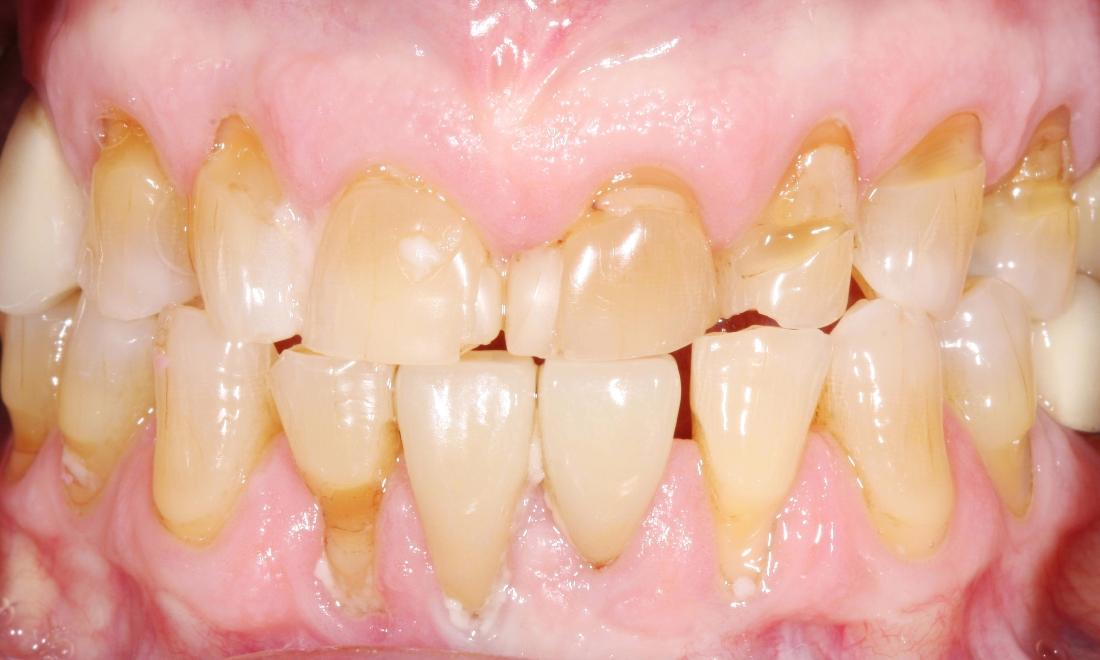 image of teeth worn and decayed from neglect | dental crowns Moline IL