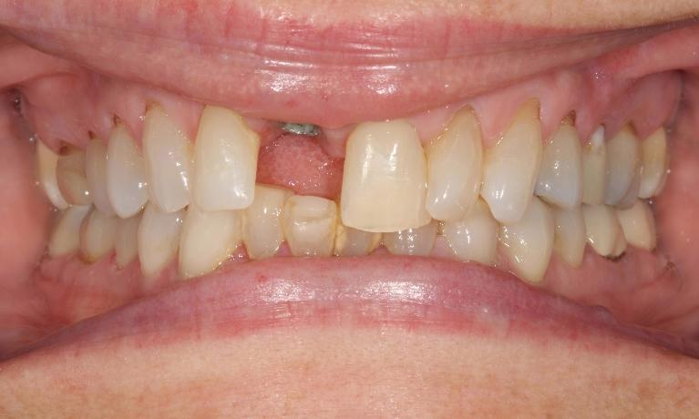 Implant-Replacement-of-Cracked-Tooth-Before-Image